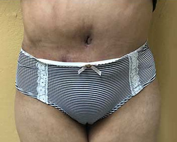 Tummy Tuck – Case 14